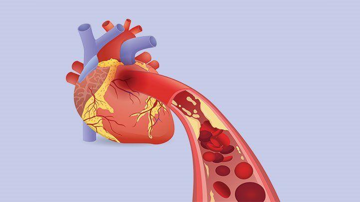 تشخیص و درمان حمله قلبی