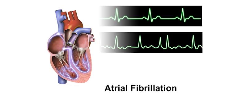 فیبریلاسیون دهلیزی یا AF قلب به چه چیزی گفته می شود؟