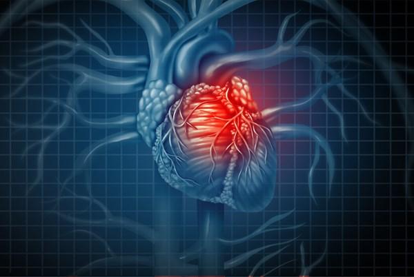 آنژیوگرافی قلب | هر آنچه باید درباره آنژیوگرافی بدانید اینجاست!