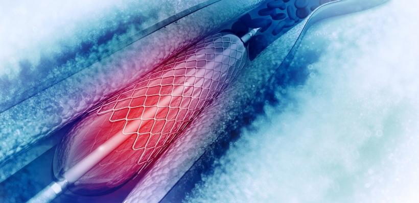 عوارض آنژیوپلاستی قلب