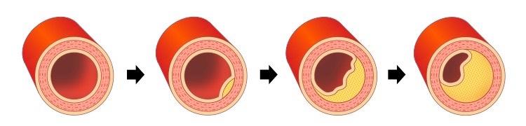 گرفتگی عروق کرونر چیست ؟ علت| علائم | تشخیص و درمان