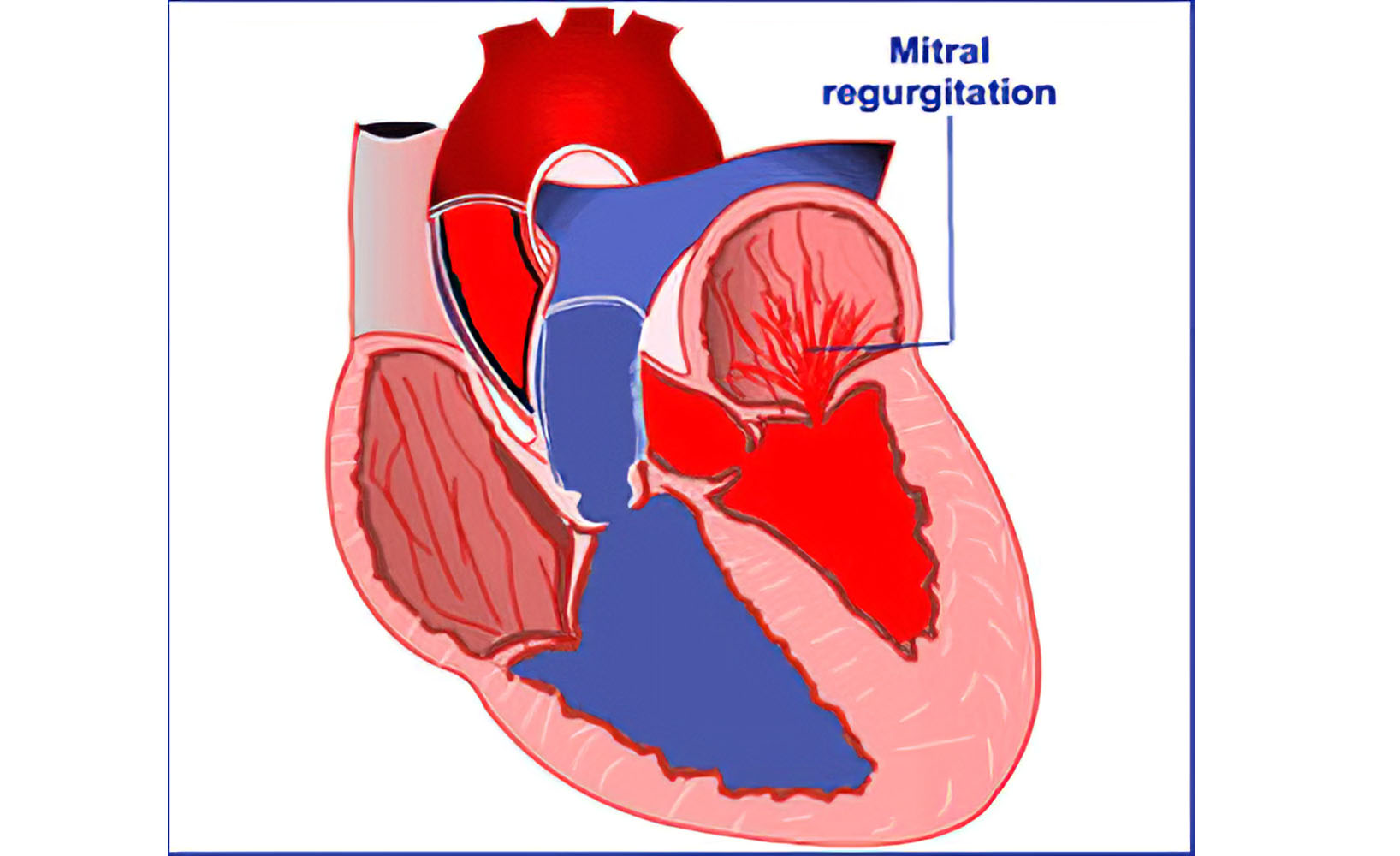 نارسایی دریچه میترال قلب : پاسخ سوالات شما اینجاست!