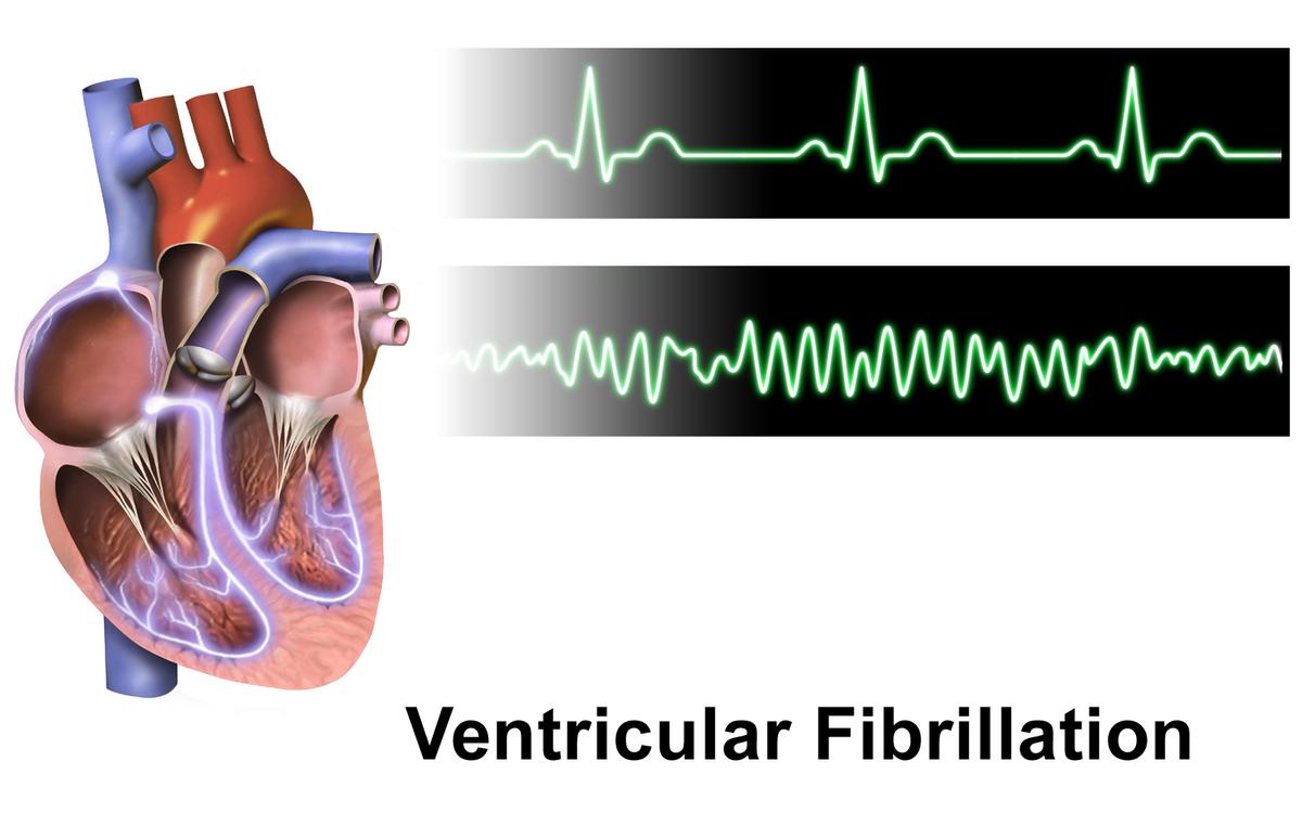 فیبریلاسیون بطنی یا VF قلب چه زمانی رخ می دهد؟