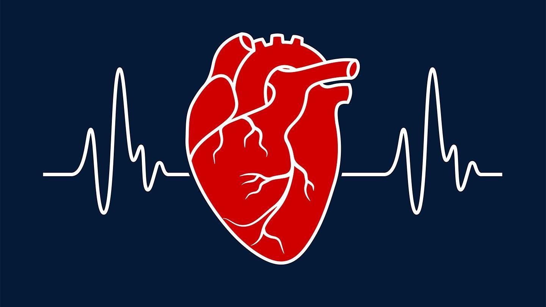 ایست قلبی چیست ؟ علت، علائم ، عوارض، تشخیص و درمان