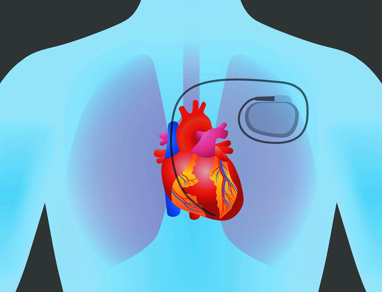 پیس میکر یا همان باطری قلبی چیست و چگونه کار می کند؟