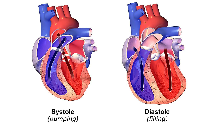 نارسایی سیستولیک در مقابل دیاستولیک قلب : تفاوت آنها در چیست؟