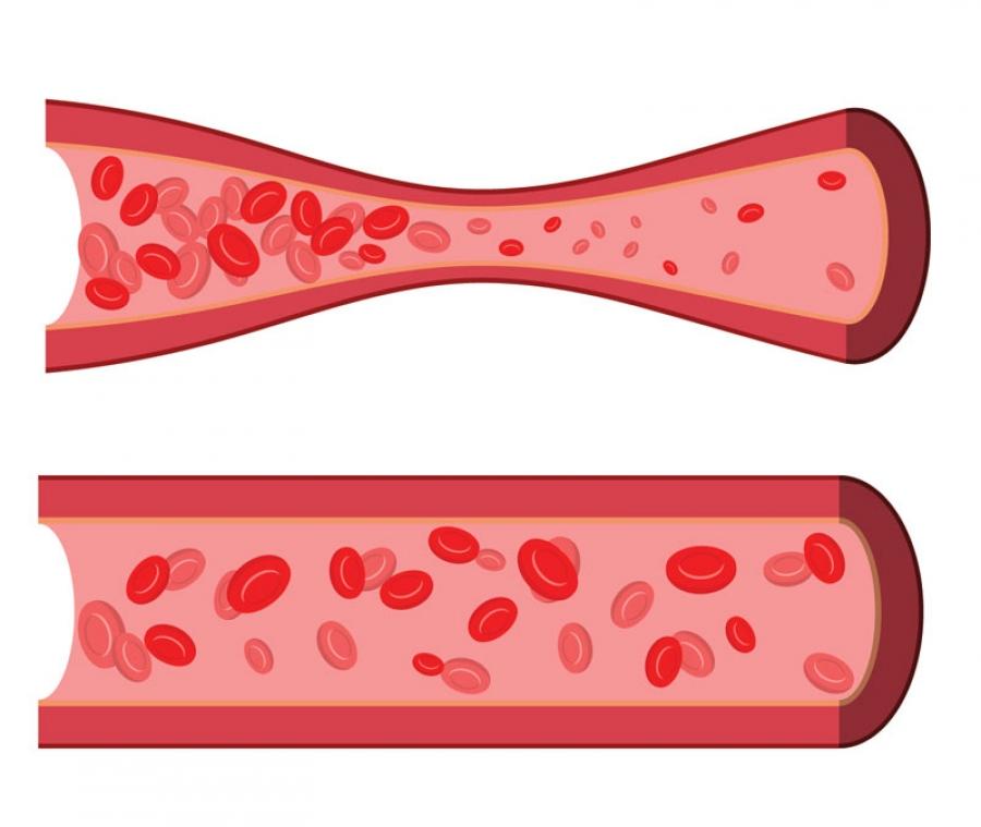 درمان آنژین پرینزمتال