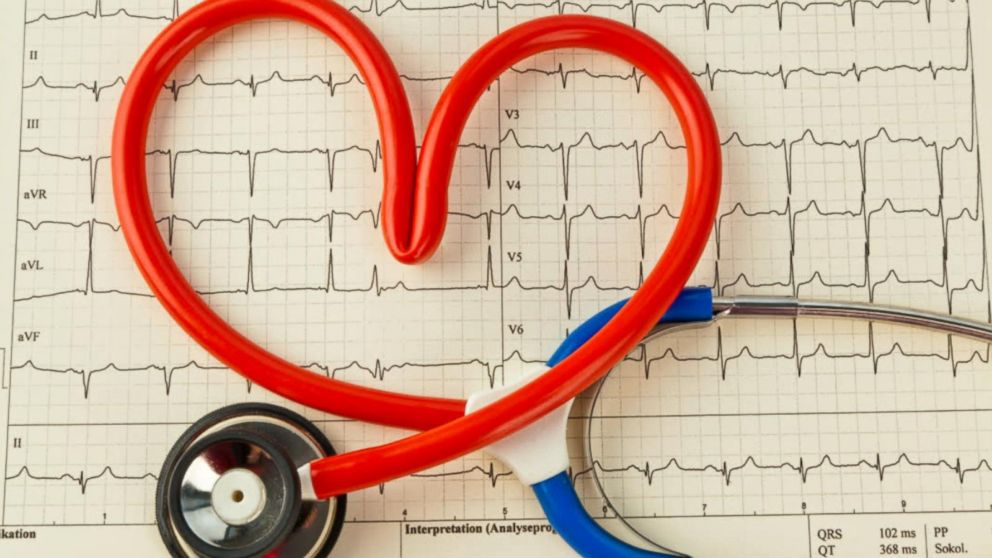خطرات ضربان قلب نامنظم