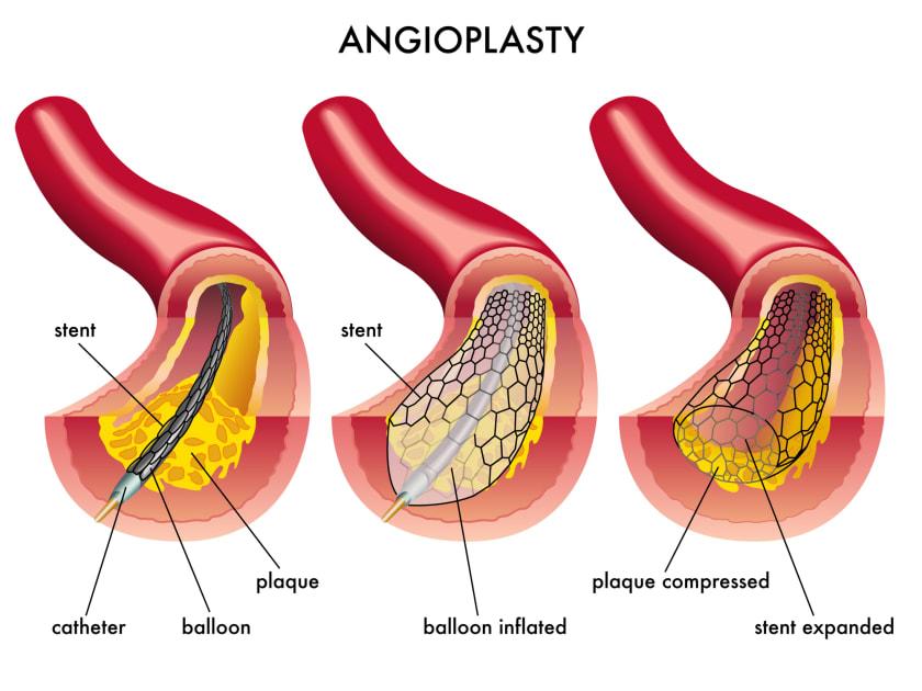 عوارض آنژیوپلاستی