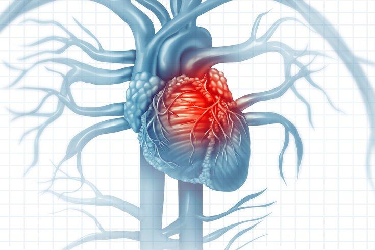 آیا سکته قلبی درمان دارد ؟ تمامی روش های درمانی