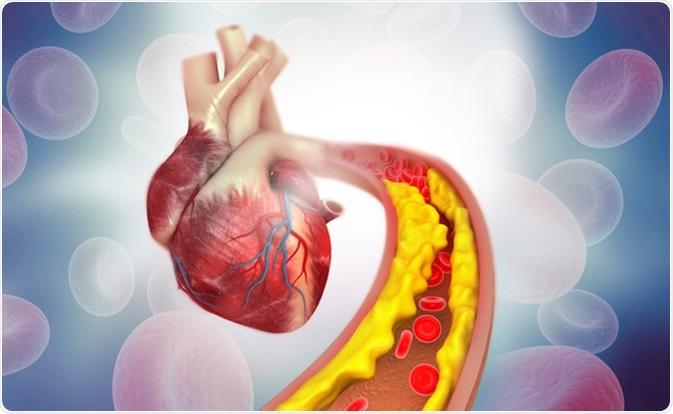 عوارض گرفتگی رگ قلب