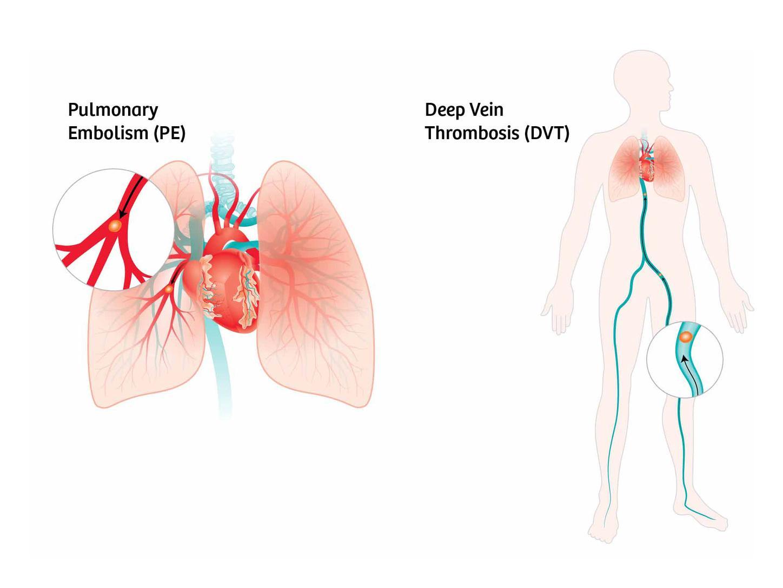 تفاوت ترومبوز و آمبولی در چیست ؟ هر آنچه باید بدانید!