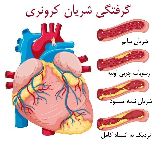 آیا گرفتگی رگ قلب با دارو رفع میشود ؟ انواع روش های درمانی