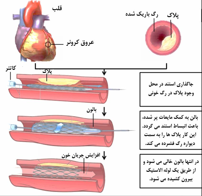 مراحل انجام آنژیوپلاستی