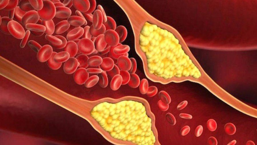 ارتباط کلسترول بالا و بیماری های قلبی؛ بررسی علل و درمان