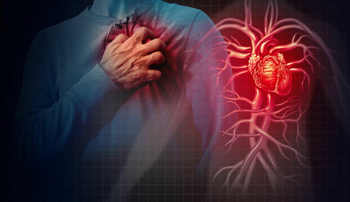 بعد از سکته قلبی چه اتفاقی می افتد